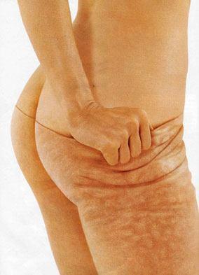Cellulite-Massage-Treatments