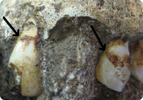 dientes sediba
