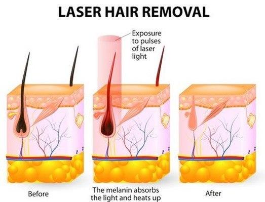 Depiladora laser casera | ¿cómo escoger?
