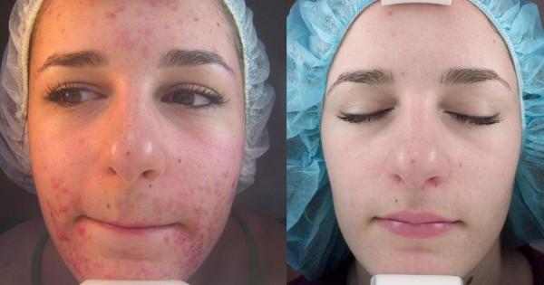 fotos-de-cicatrices-de-acne-antes-y-despues-abrasion-con-laser