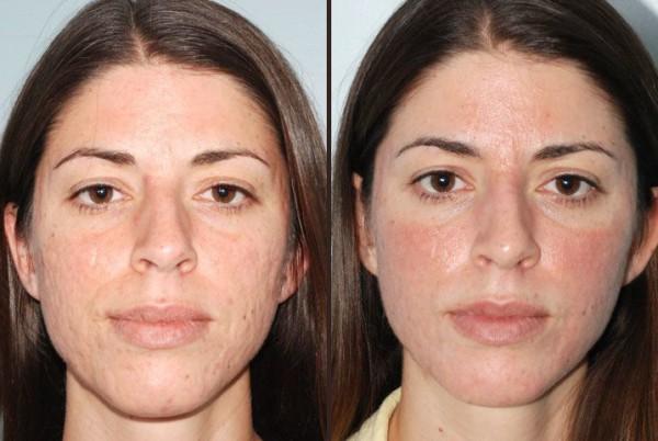 fotos-de-cicatrices-de-acne-antes-y-despues-primeras-sesiones-de-tratamiento