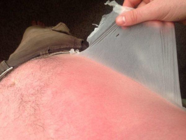 increibles-efectos-sol-piel