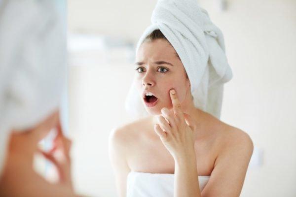 El nuevo secreto de la belleza bicarbonato acne