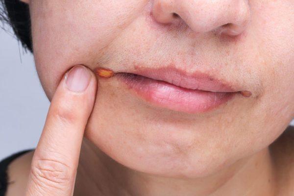 Síntomas del herpes labial