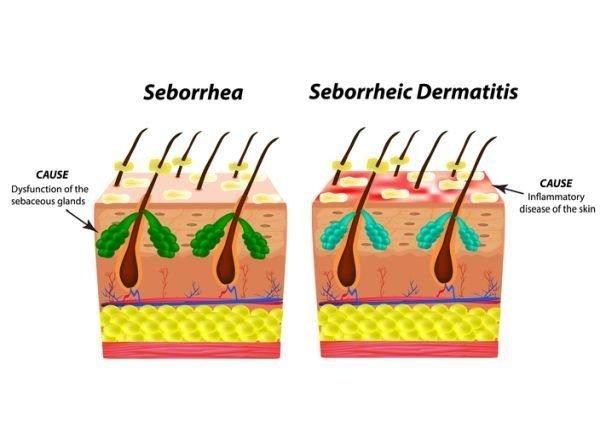 que-champu-usar-para-dermatitis-seborreica-causas-istock