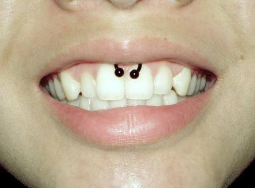 Piercing Smiley