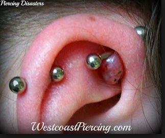 queloide-piercing