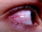 Remedios para evitar los ojos rojos