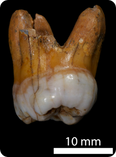molar denisovano