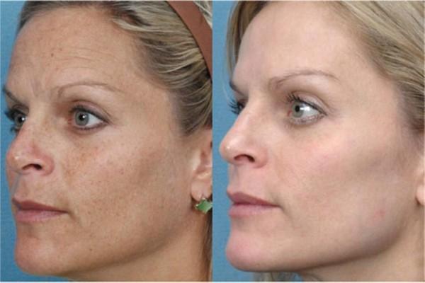fotos-de-cicatrices-de-acne-antes-y-despues-dermoabrasion-resultado