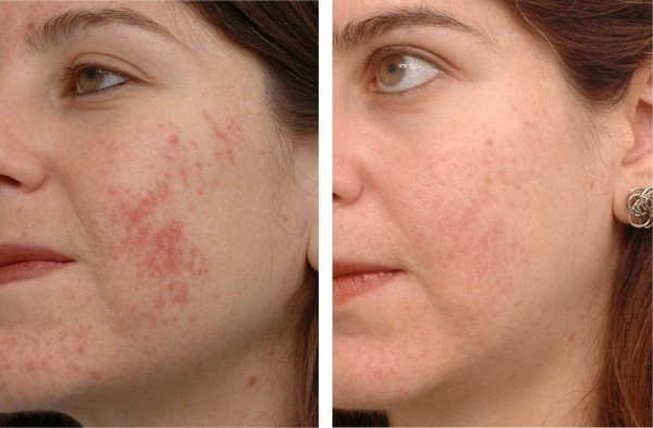 fotos-de-cicatrices-de-acne-antes-y-despues-eliminacion-casi-total