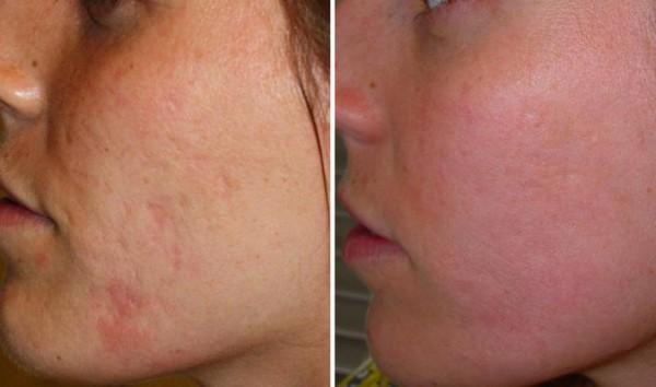 fotos-de-cicatrices-de-acne-antes-y-despues-escision-quirurgica