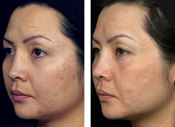 Fotos De Cicatrices De Acn 233 Antes Y Despu 233 S Tendenzias Com