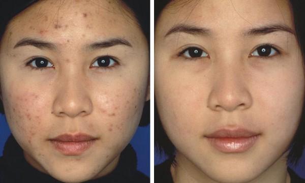 las-fotos-de-cicatrices-de-acne-antes-y-despues