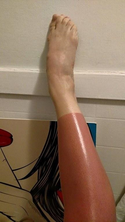 increibles-efectos-sol-tobillo