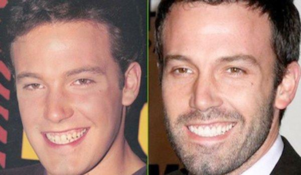 antes-y-despues-dientes-famosos-ben-affleck