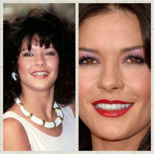antes-y-despues-dientes-famosos-catherine-zeta-johns