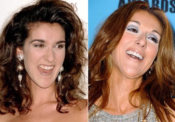 antes-y-despues-dientes-famosos-celine-dion