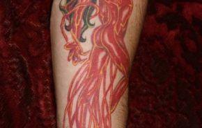 Complicaciones derivadas del tatuaje II