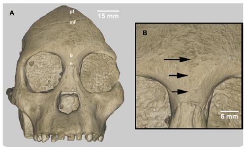 Características neandertales un un cráneo de Homo sapiens