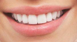 Trucos para una sonrisa perfecta