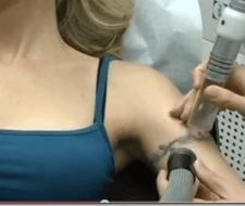 Razones para eliminar un tatuaje