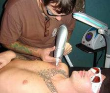 Métodos para quitar tatuajes