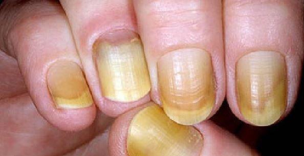 Por qué se ponen las uñas amarillas y trucos para evitarlo - Tendenzias.com