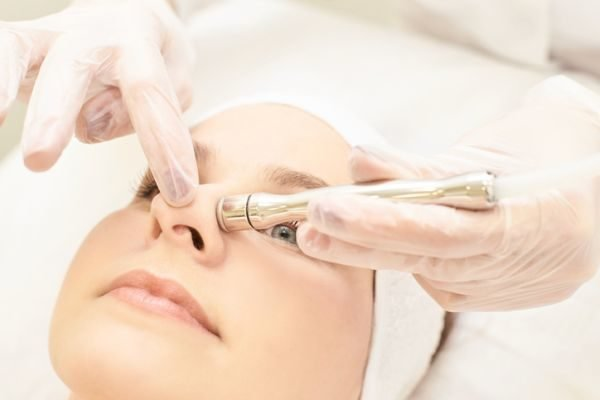 microdermoabrasion-limpieza-puntas-de-diamante-paciente-nariz-istock