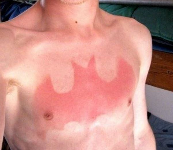 Tatuaje solar sunburn 3