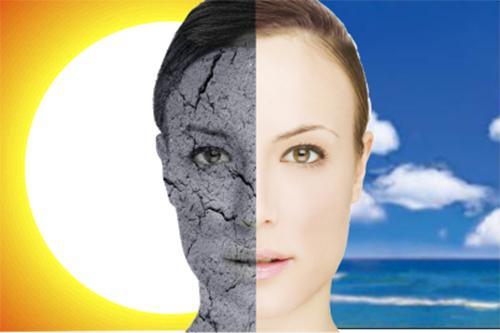 tatuaje solar sunburn
