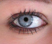 Implantes Oculares
