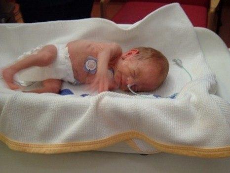 neonatal_baby